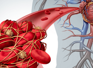 Trombos in bloedvaten